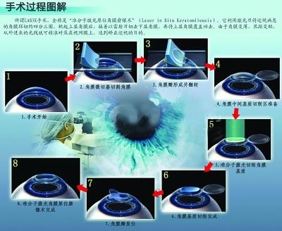 近视除了激光手术还有可以根治的方法吗?