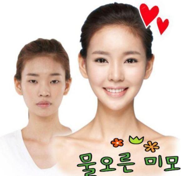 韩国人整容前后对比 组图